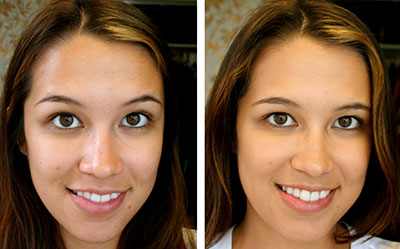 Las respuestas por el acné